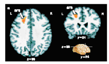 The Role of the Prefrontal Cortex in Recognition Memory ...